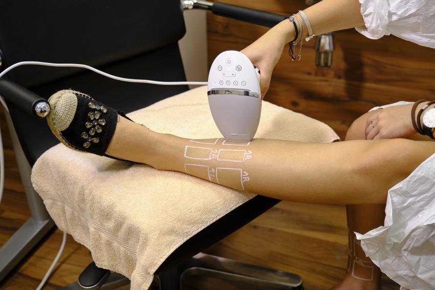 Behandling med et af de testede IPL-apparater. Foto: Tobias Meyer
