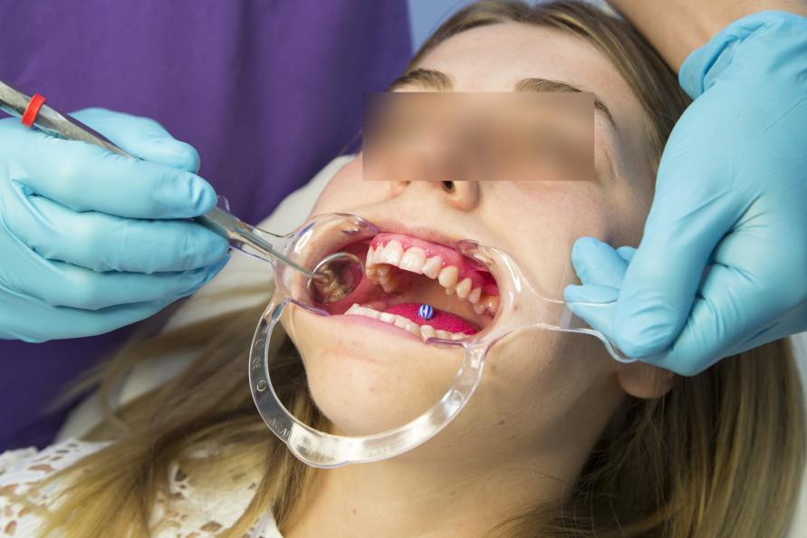 Tandlægen undersøgte mængden af plak og tandkødets tilstand både før og efter 28 dages brug. Foto: Matthieu Colin